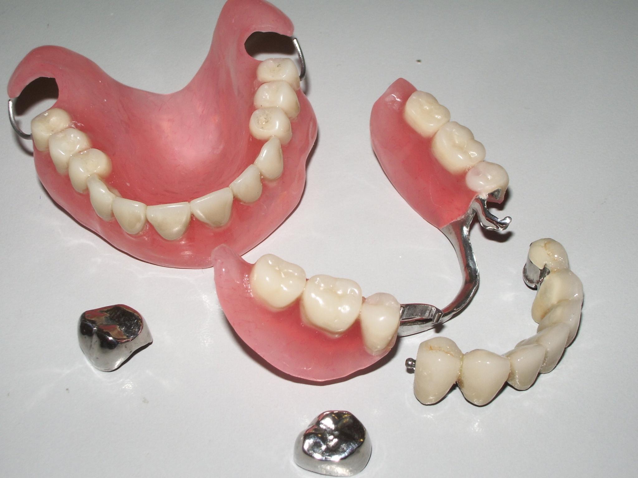 Как чистить съёмные зубные протезы в домашних условиях